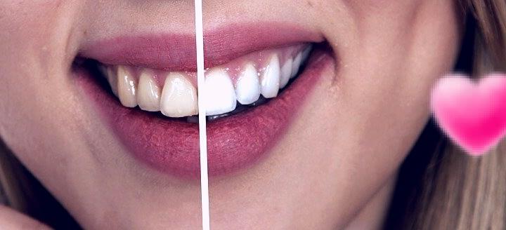 Tratamiento para blanquear los diente 100 % exitoso. 3